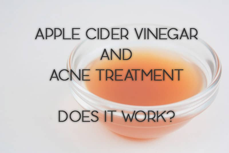 Apple Cider Vinegar and Acne Treatment: Does It Work?